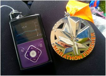 Glycémie pendant le marathon des Twin Cities, USA (Global Heroes, Fondation Medtronic)