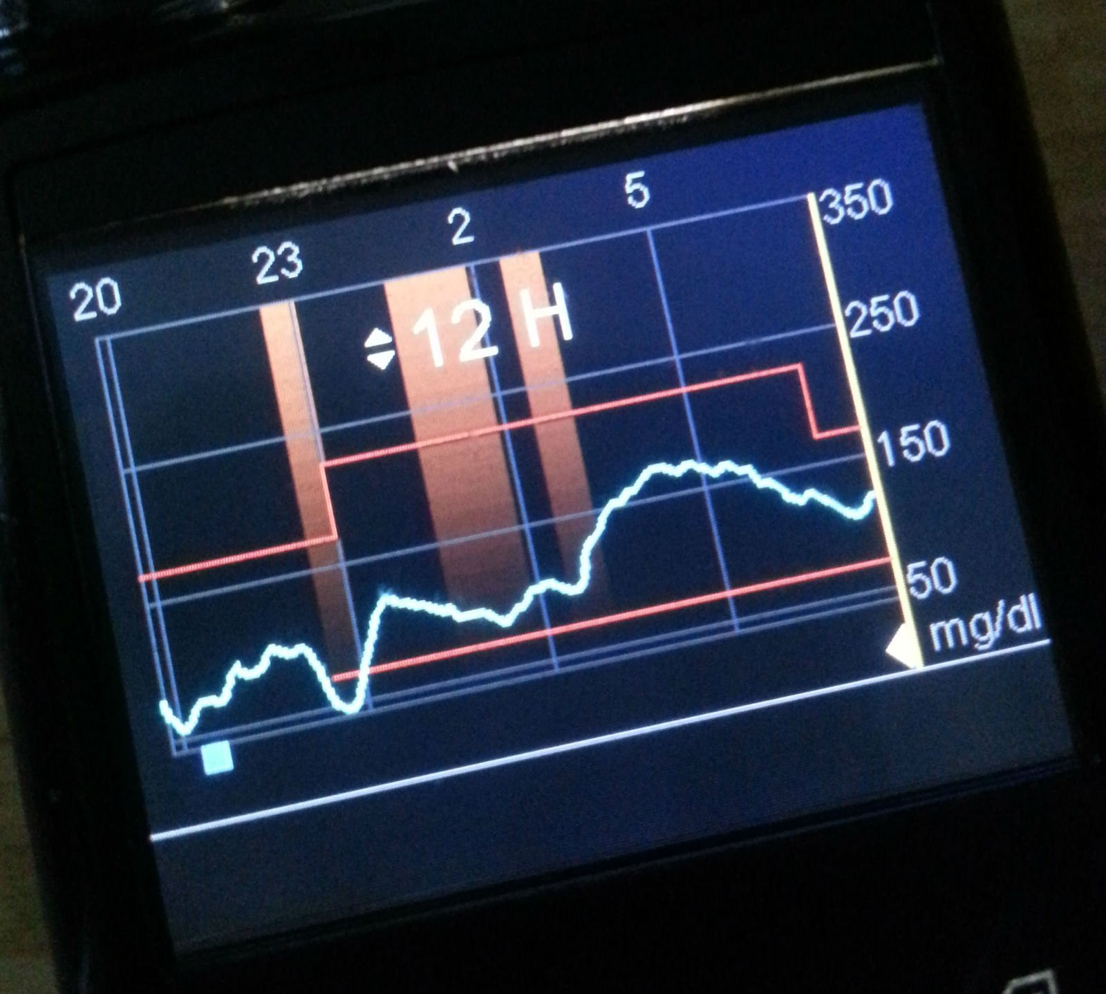 pompe insuline 640g de medtronic mesure du glucose en continu. Black Bedroom Furniture Sets. Home Design Ideas